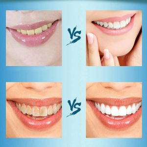 Praf pentru albirea dinților